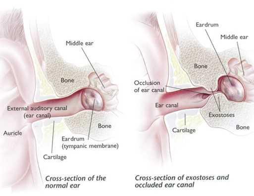 External auditory exostosis (EAE)