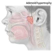 Adenoids, Adenoiditis, and adenoid hypertrophy (enlarged adenoids)