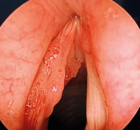 Recurrent Respiratory Papillomatosis (RRP)